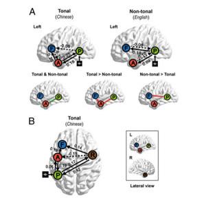 languages-brain